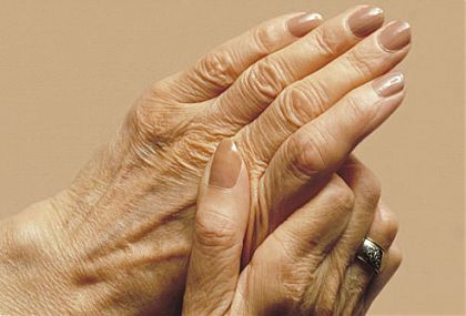 Артрит на пръстите на ръката мкб